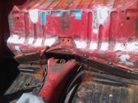 bracket removal